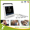 New Model Touch Screen Cheapest Portable Ultrasound Machine, used Portable Ultrasound-WELLC06