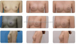 plla hyaluronic acid injections for buttocks breast for wrinkle removal GANAFILL
